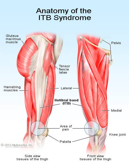Anatomy of the itb-syndrome